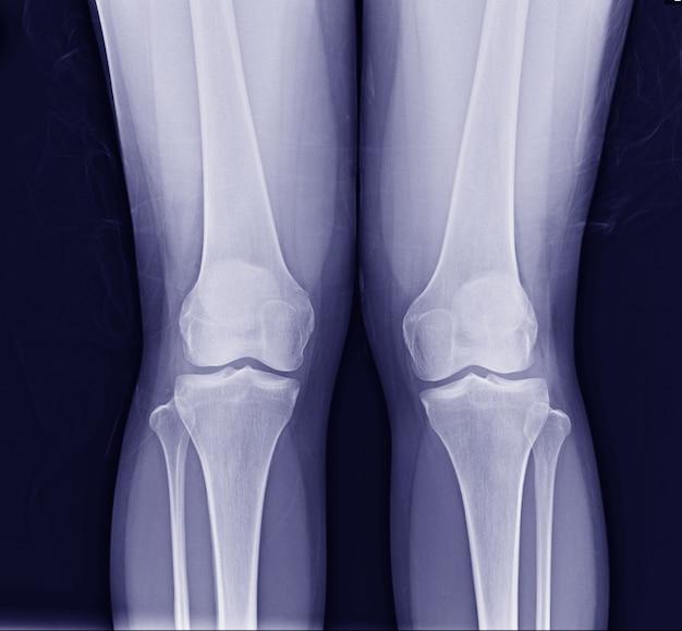 Radiographie du genou