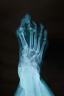 Radiographie du pied droit