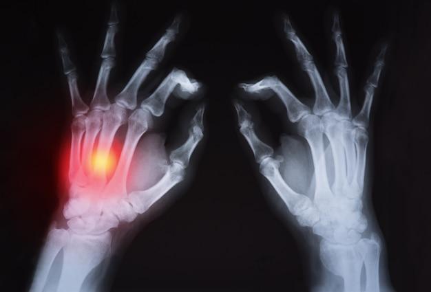 La radiographie de la main de l'homme surlignée en rouge.