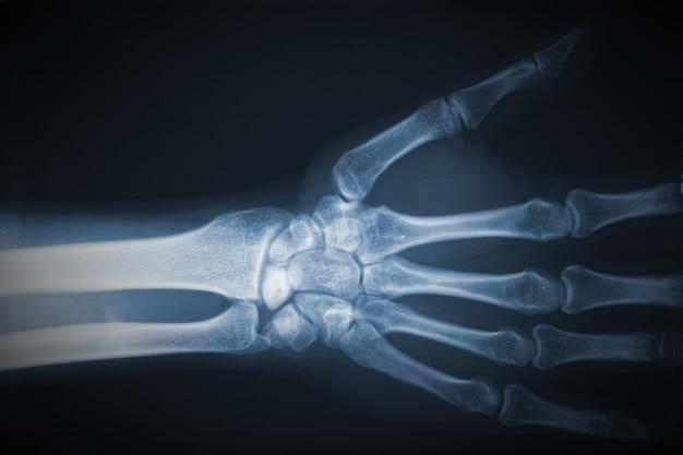 Radiographie des mains