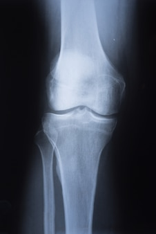 Radiographie médicale du genou
