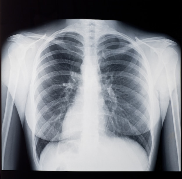 Radiographie des poumons de la femme, vue de face.