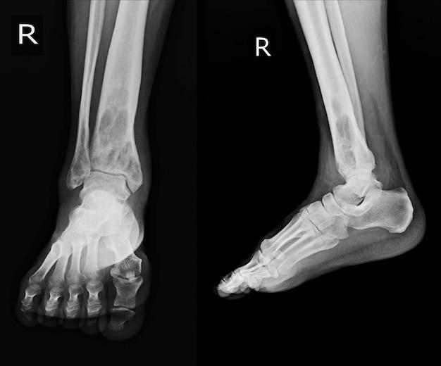 Radiographie: rt.ankle découvrant une lésion osterolytique intramédullaire du tibia distal droit