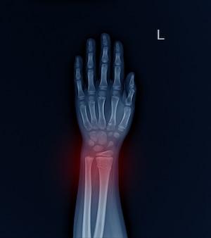 Rayon de fracture aux rayons x au poignet gauche.