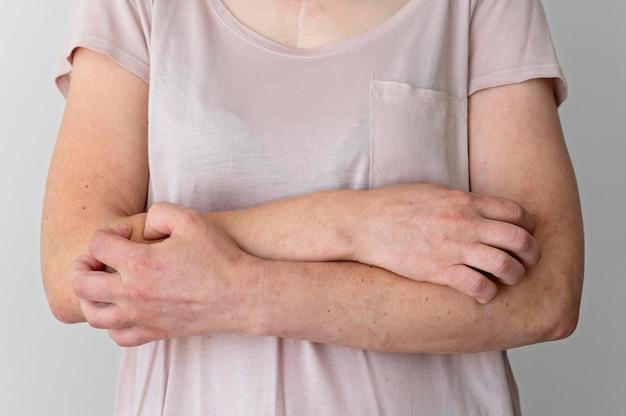 Réaction d'allergie cutanée sur le bras de la personne