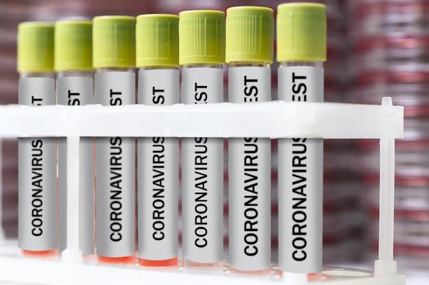 Recherche en laboratoire du coronavirus. contenants ou tubes avec couvercles verts. kits de test marqués avec du sang dans un support de tubes à essai blanc. arrière-plan flou. pandémie mondiale covid-19. quarantaine. fermer