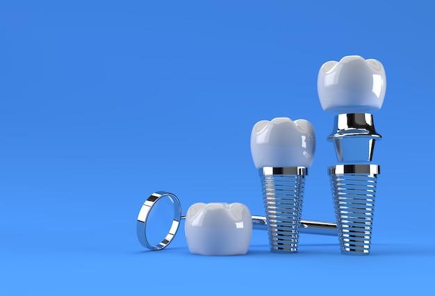 Rendu 3d du concept de chirurgie des implants dentaires.