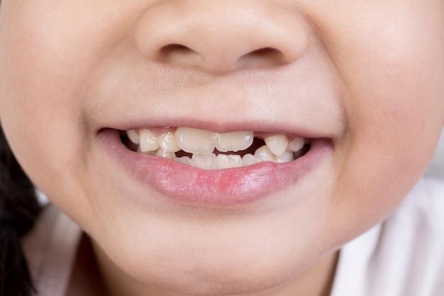 Rire asiatique fille mignonne bouche avec de grandes dents.