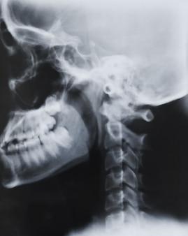Scientifique diagnostic clinique de chirurgie rachis