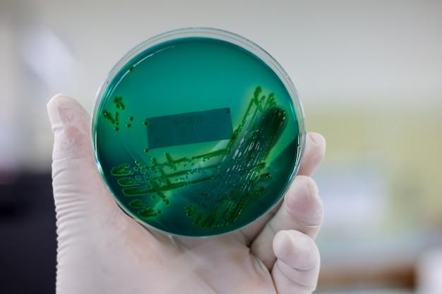 Les scientifiques tiennent une plaque de culture bactérienne.