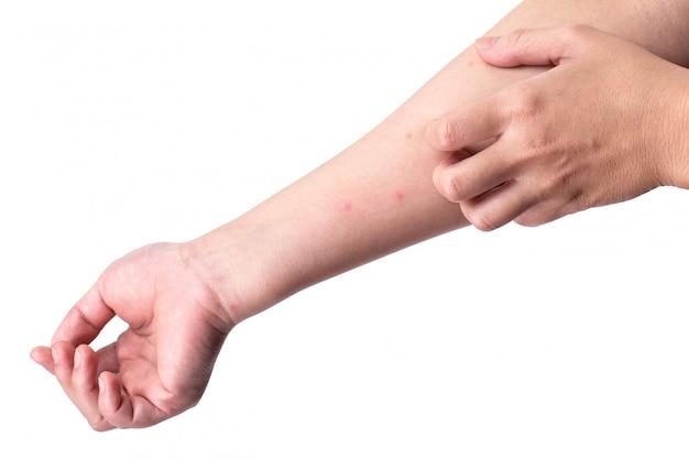 Se gratter le bras à cause de piqûres d'insectes