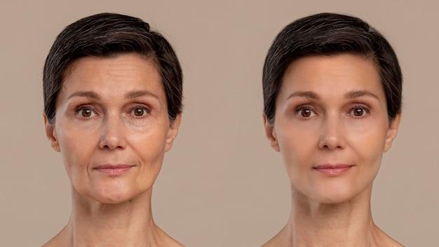 Soin de beauté anti-âge