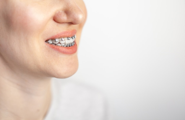 Le sourire d'une jeune fille avec des accolades sur ses dents blanches. redressement des dents.