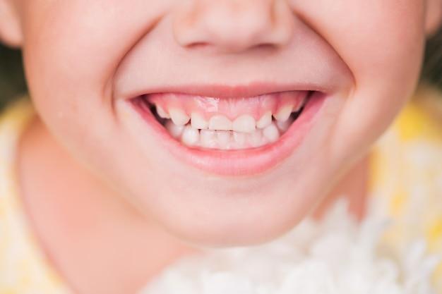 Sourire d'une petite fille caucasienne avec des dents de bébé.