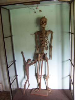 Squelette, goth