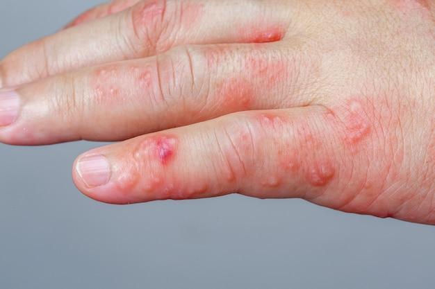 Symptômes du zona, du zona ou de l'herpès zoster sur le bras
