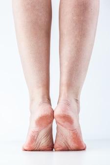 Talons féminins peau déshydratée