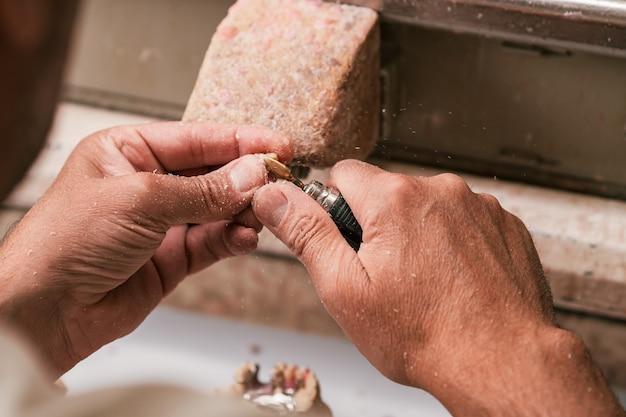 Technicien dentaire façonnant une partie d'un squelette de prothèse dentaire avec une machine prothétique dentaire à micromoteur.