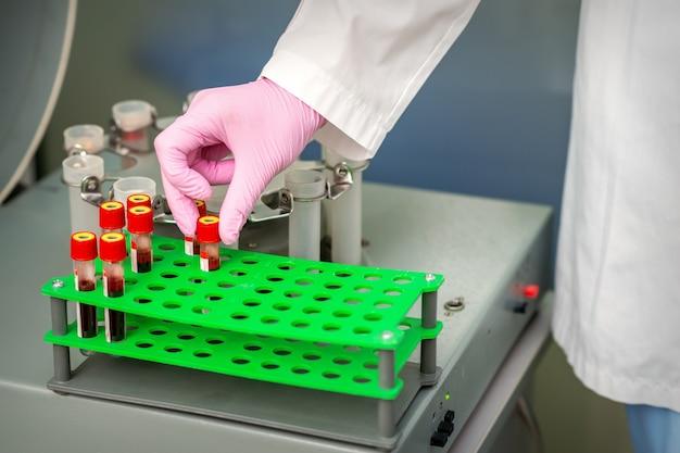 Technicien médical prenant un tube d'échantillonnage de sang de rack dans le laboratoire de recherche