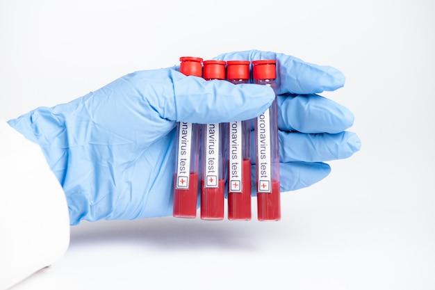 Test négatif et positif pour le coronavirus, scientifique en laboratoire avec des tubes à essai