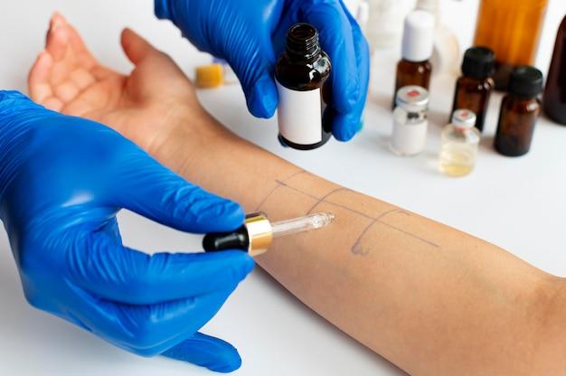 Test de réaction allergique cutanée sur le bras d'une personne