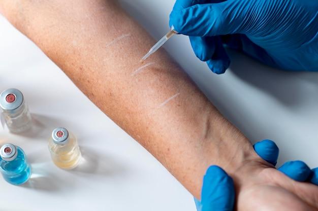 Test de réaction allergique cutanée sur le bras