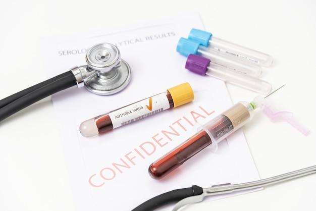 Le texte anthrax est écrit sur un flacon dont l'ampoule est tenue par une main dans un gant médical jetable. notion médicale.