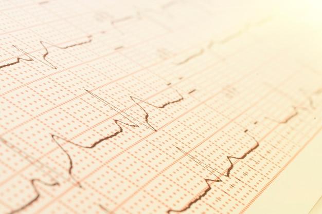 Texture des ondes pulsées. cardiogramme sur une feuille de papier en gros plan.