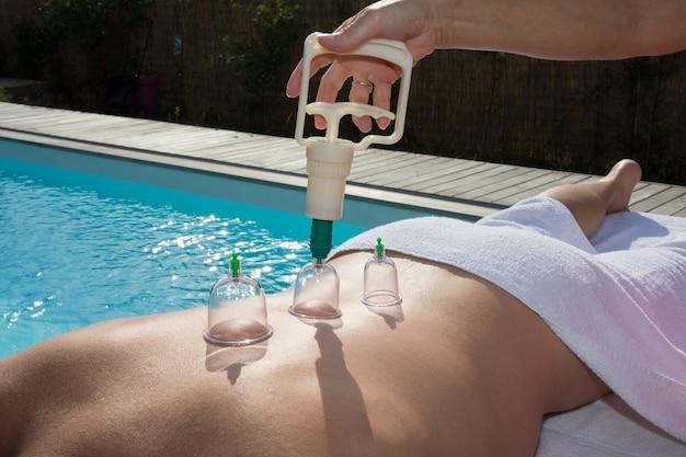 Thérapeute d'acupuncture plaçant des tasses sur le dos d'un patient de sexe masculin