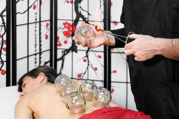 Thérapie de médecine traditionnelle chinoise. thérapie par ventouses, un traitement utilisé pour le soulagement de la douleur et d'autres avantages pour la santé.