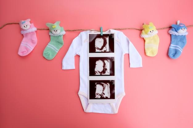 Tissu bébé avec bébé échographie 4d et chaussettes sur fond rose.