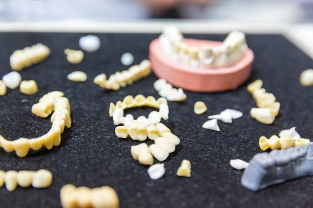 Traitement des prothèses, dentisterie prothétique, implants