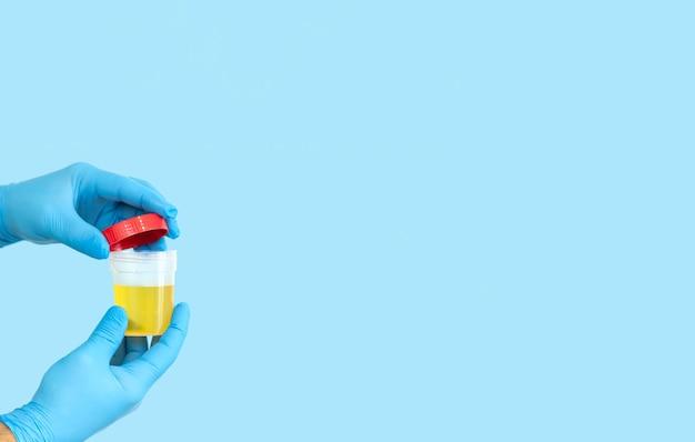 Travailleur médical tenant le récipient d'échantillon d'urine ouvert pour l'analyse d'urine médicale. concept de soins de santé et de médecine.