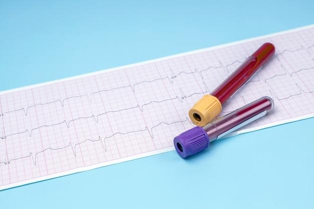 Un tube à essai avec du sang et un électrocardiogramme