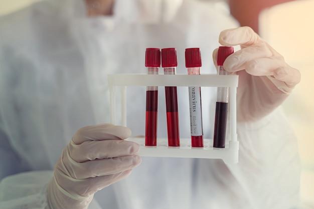 Tube à essai avec le sang du patient entre les mains d'une infirmière