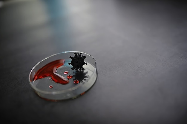 Tube à essai avec le sang du patient pour les tests. analyse pour le virus. études de laboratoire sur la pandémie de coronavirus. développement de vaccins.