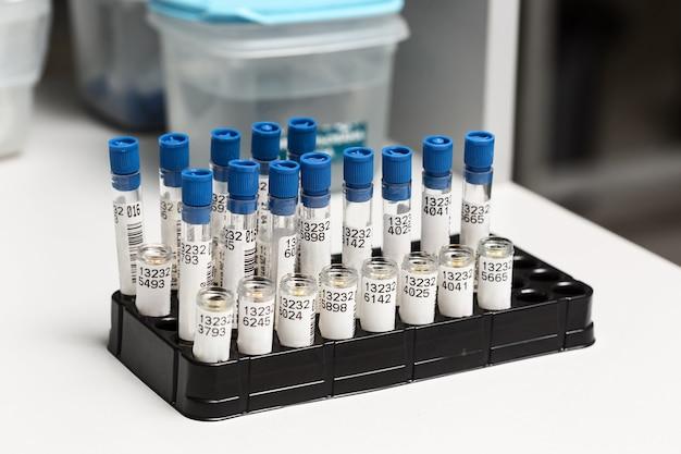 Tubes à essai disposés sur chariot médical