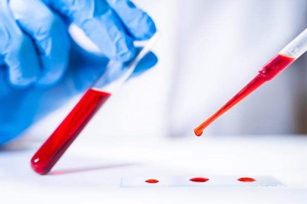 Tubes à essai avec du sang en laboratoire