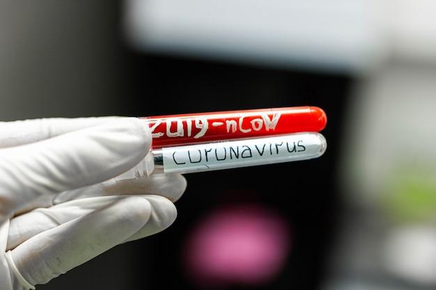 Tubes à essai d'étude de coronavirus avec des analyses de vaccin