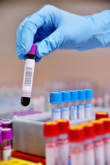 Tubes à essai médicaux avec analyses de sang