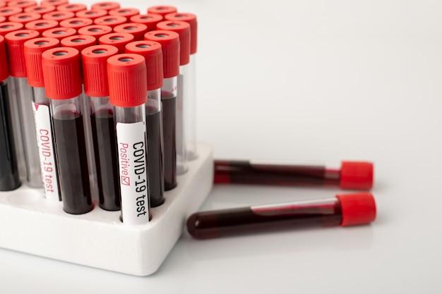 Tubes à essai de sang dans la plate-forme de mousse sur la table du scientifique
