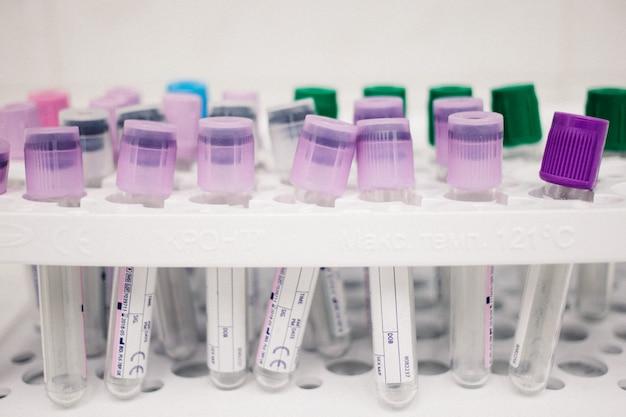 Tubes multicolores pour le sang, articles médicaux, collection de biomatériaux, concept de cabinet médical