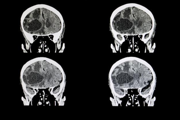 Tumeur cérébrale métastatique