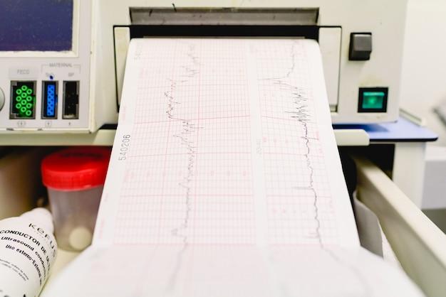 Valence, espagne - 25 octobre 2018: graphique avec électrocardiogramme d'une femme enceinte lors d'un examen hospitalier.