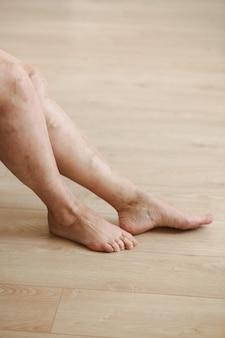 Varices douloureuses et varicosités sur les jambes de la femme active, s'auto-propulsant pour surmonter la douleur. maladie vasculaire, problèmes de varices, concept de vie active.