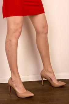 Varices sur les jambes d'une femme mince. phlébologie