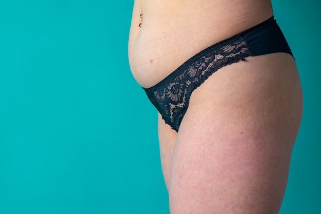 Ventre et jambes féminins couverts de vergetures avec de la cellulite
