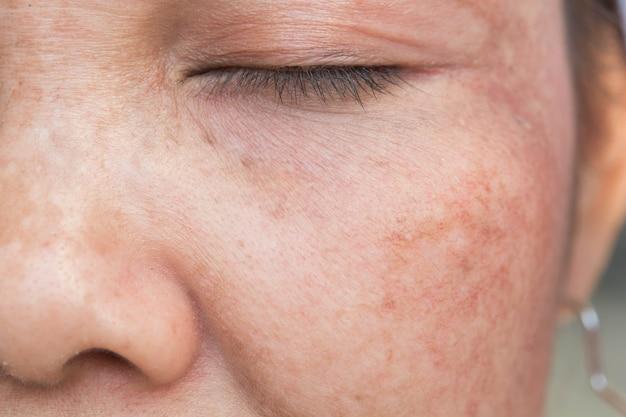 Visage de taches de rousseur et problème de peau