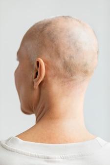 Vue arrière femme atteinte d'un cancer de la peau