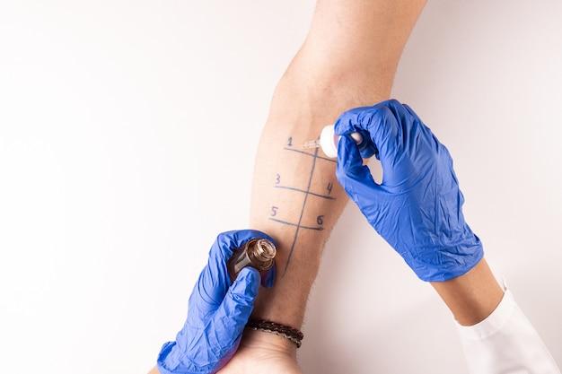 Vue de dessus d'un médecin testant une allergie à un patient.